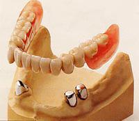 茶筒の原理を利用「コーヌスクローネ義歯」