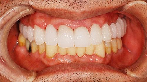 仮歯によるイメージのすり合わせ