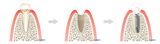 抜歯即時荷重で「その日のうちに」歯が入ります!
