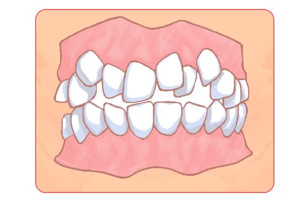 子供の「歯並び矯正」にも対応しています