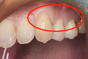「見た目も改善」する歯肉移植手術